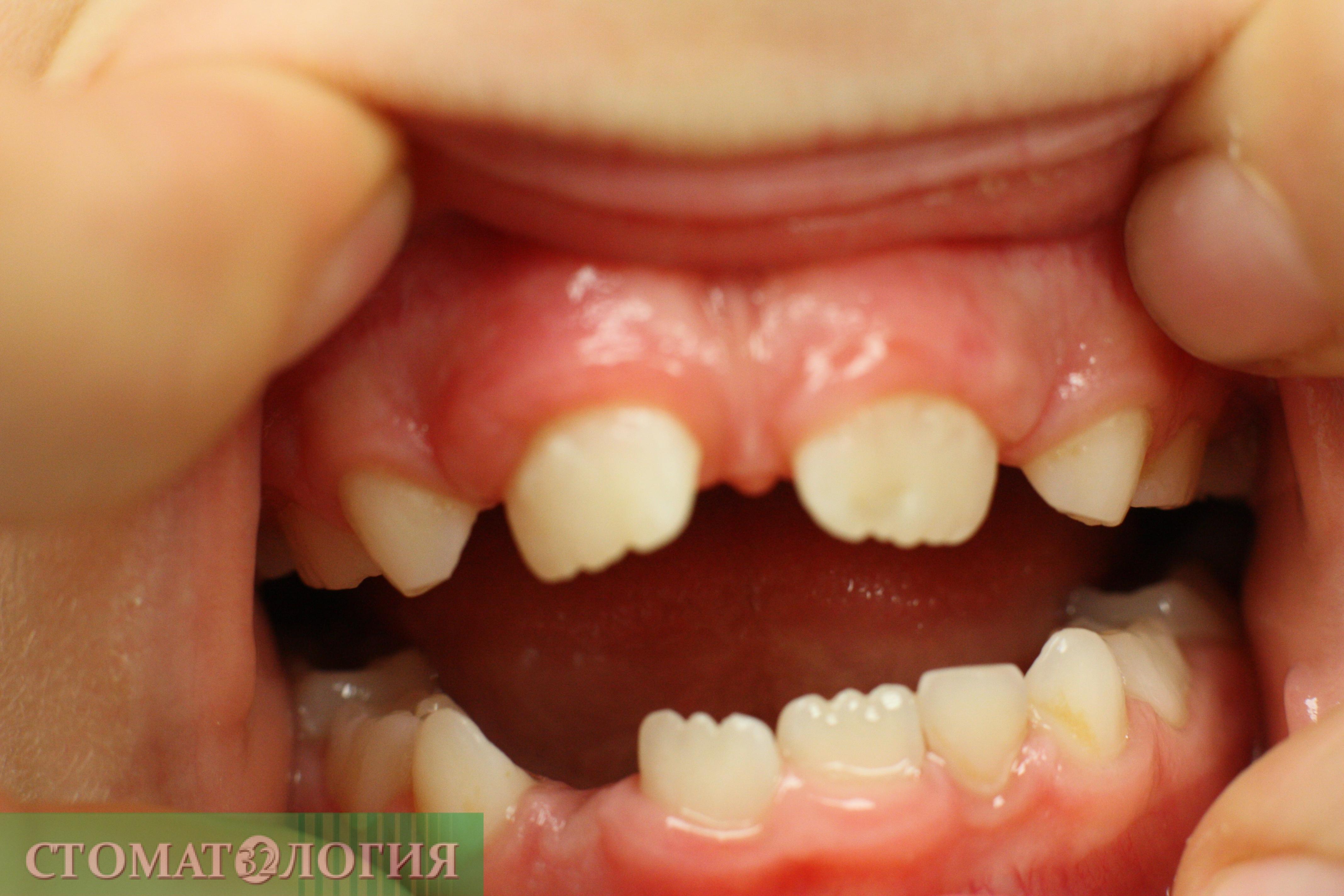 ZahnTrema IMG 6306