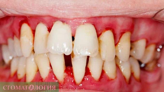 kataralniy gingivit 6