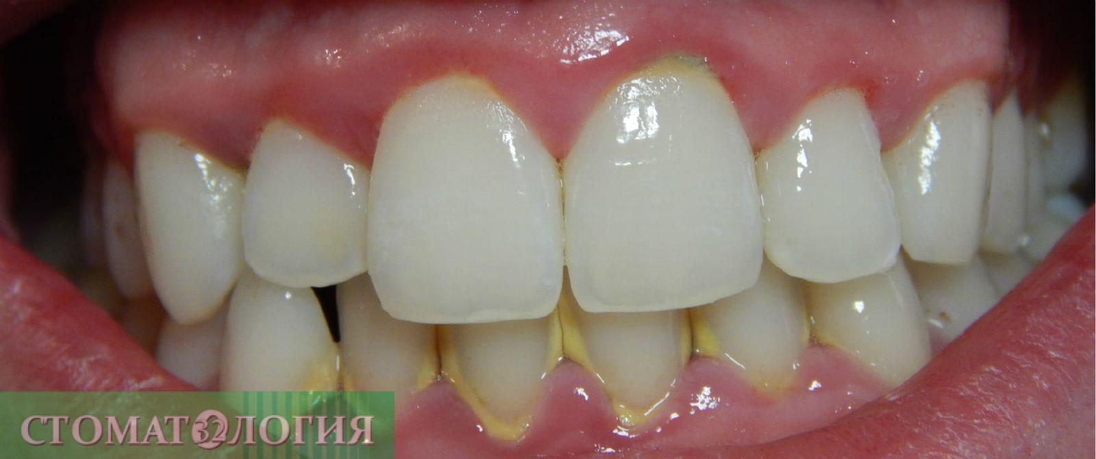 zubnoy nalet